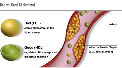 colesterol sintomas:
