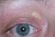 Signos de Malnutrición - Ojos